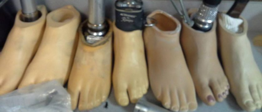 Image of white skin tone prosthetic feet