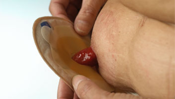 Skin barrier being removed from a stoma. The stoma is bright red and roughly the size of a bottle cap. It is right to the left of the ostomate's naval.