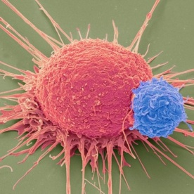 Microscopic image of a CRISPR T-cell. Round red body with straight flagellae(?) extending in all directions from a redder base; a smaller blue bumpy sphere is attached to the red body.