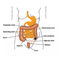 "Diagram of colostomy in human abdomen; ""transverse colon"", ""descending colon"", ""ascending colon"", ""ileum"", ""end colostomy"", ""caecum"", ""sigmoid colon"", ""rectum"", ""anus"" are labeled"