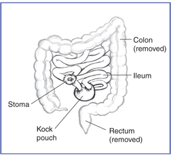 Diagram shows the colon(labeled) and rectum(labeled) have been removed. The ileum(labeled) is connect to an internal kock pouch(labeled) which is directed to an external stoma(labeled)