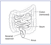 Diagram indicates that colon has been removed; ileum(labeled) has been stitched near the anus(labeled) to create an ileoanal reservoir(labeled)